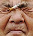 عوارض چشمي دود سيگار